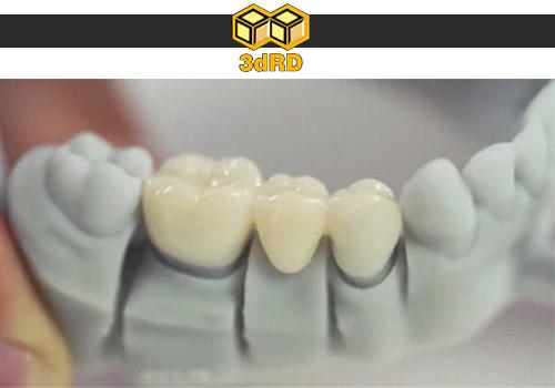 درست کردن تاج دندان با پرینتر سه بعدی