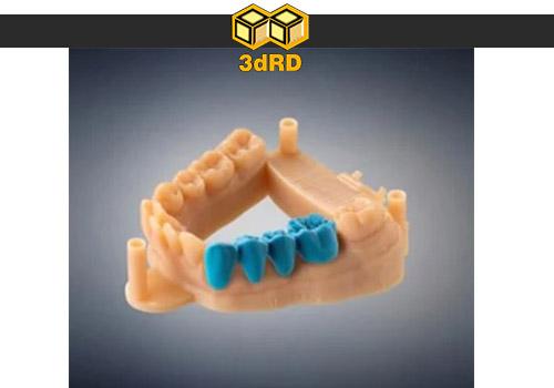 پرینتر سه بعدی در دندان پزشکی