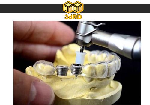 کاربرد پرینتر سه بعدی در دندان پزشکی