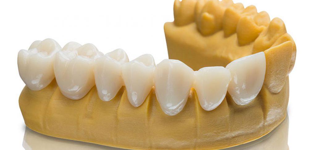 ساخت ایمپلنت دندان با پرینتر سه بعدی