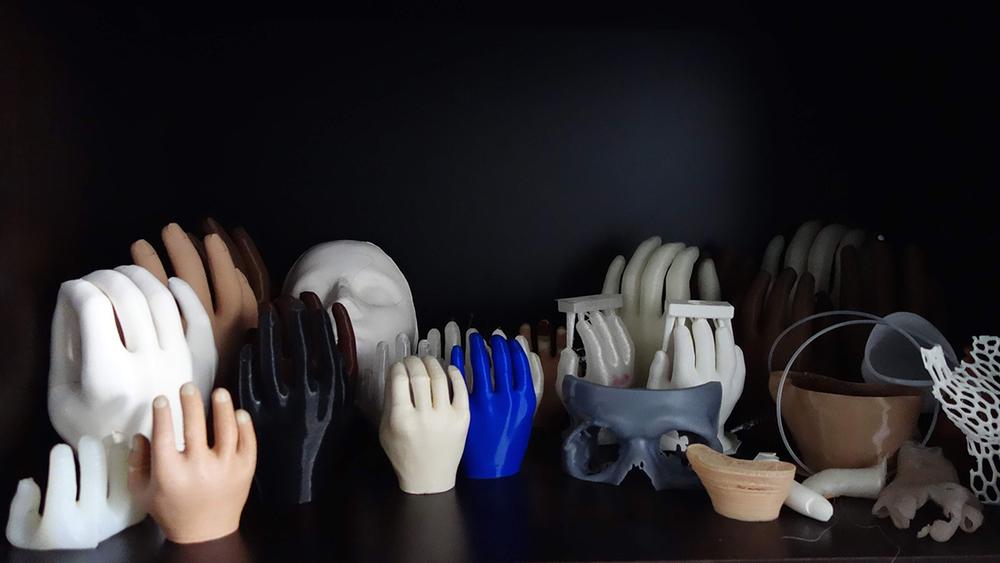 ساخت پروتز های سه بعدی در پزشکی